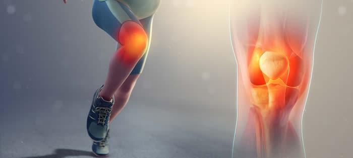 Lesiones de rodilla en deportistas: las más frecuentes y cómo prevenirlas