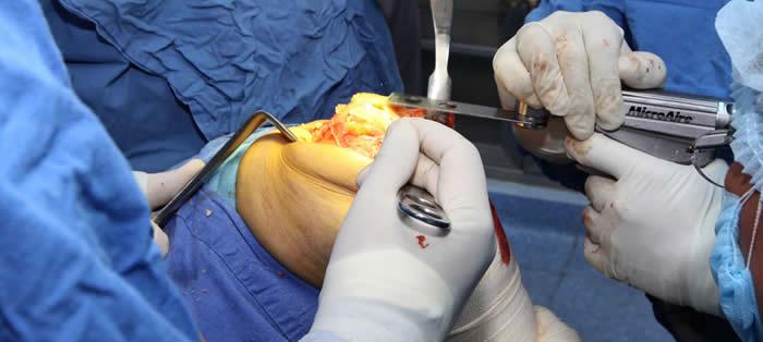 Cirugía articular: la solución a las lesiones en las articulaciones