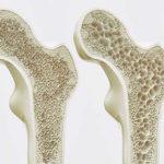 Osteoporosis una causa de las fracturas